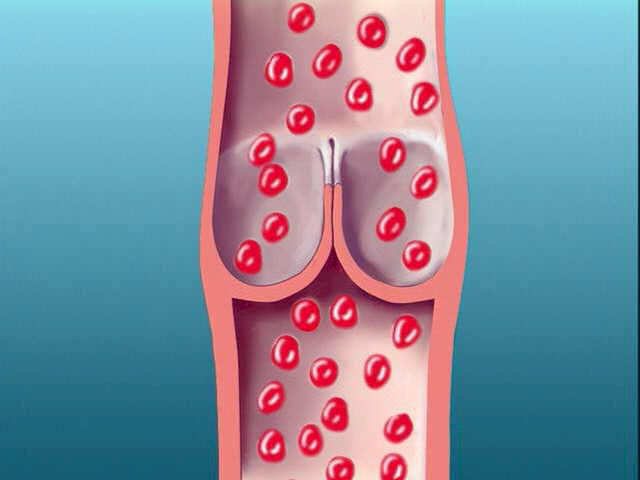 A one-way valve inside a leg vein.