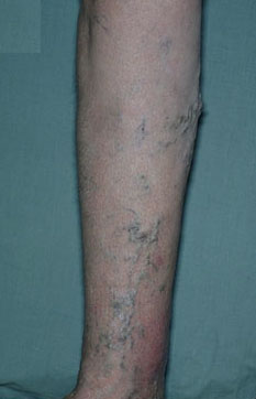 Varicose veins are a visible sign of increased pressure inside the leg veins.